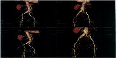 Mise en place d'une endoprothèse aorto-uni-iliaque pour anévrisme de l'aorte abdominale et surtout anévrisme iliaque de 39 mm avec la réalisation d'un pontage croisé droit / gauche
